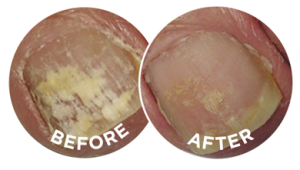 The before and after photographs are typical of the effects of Flexitol Anti-Fungal Liquid.