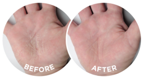 The before and after photographs are typical of the effects of Flexitol Hand Balm
