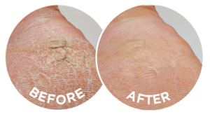 The before and after photographs are typical of the effects of Flexitol Eczema & Psoriasis Cream.