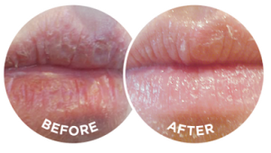 The before and after photographs are typical of the effects of Flexitol Lip Balm.