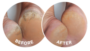 The before and after photographs are typical of the effects of Flexitol Heel Balm.