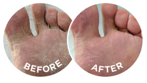 The before and after photographs are typical of the effects of Flexitol Medicated Anti-Fungal Cream.